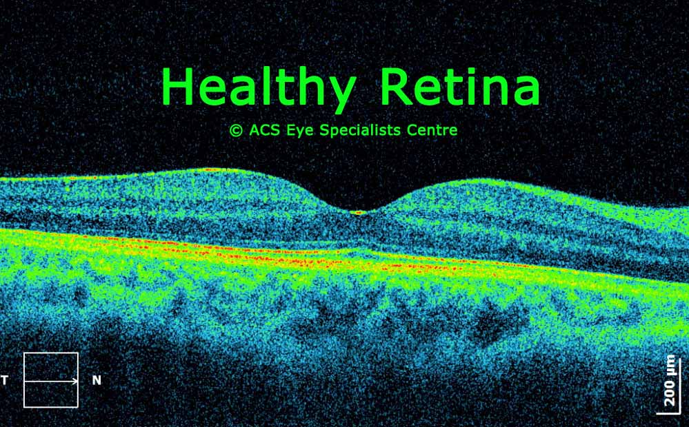 OCT scan healthy Retina