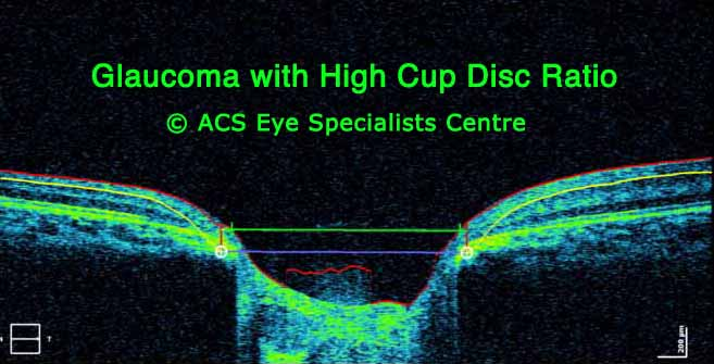 OCT Glaucoma